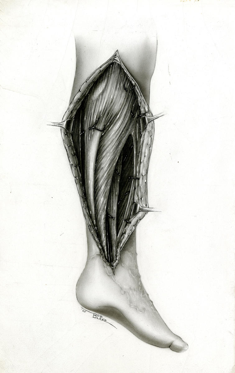 Illustration, pencil, lower leg, n.d.; Robert L. Blake Papers