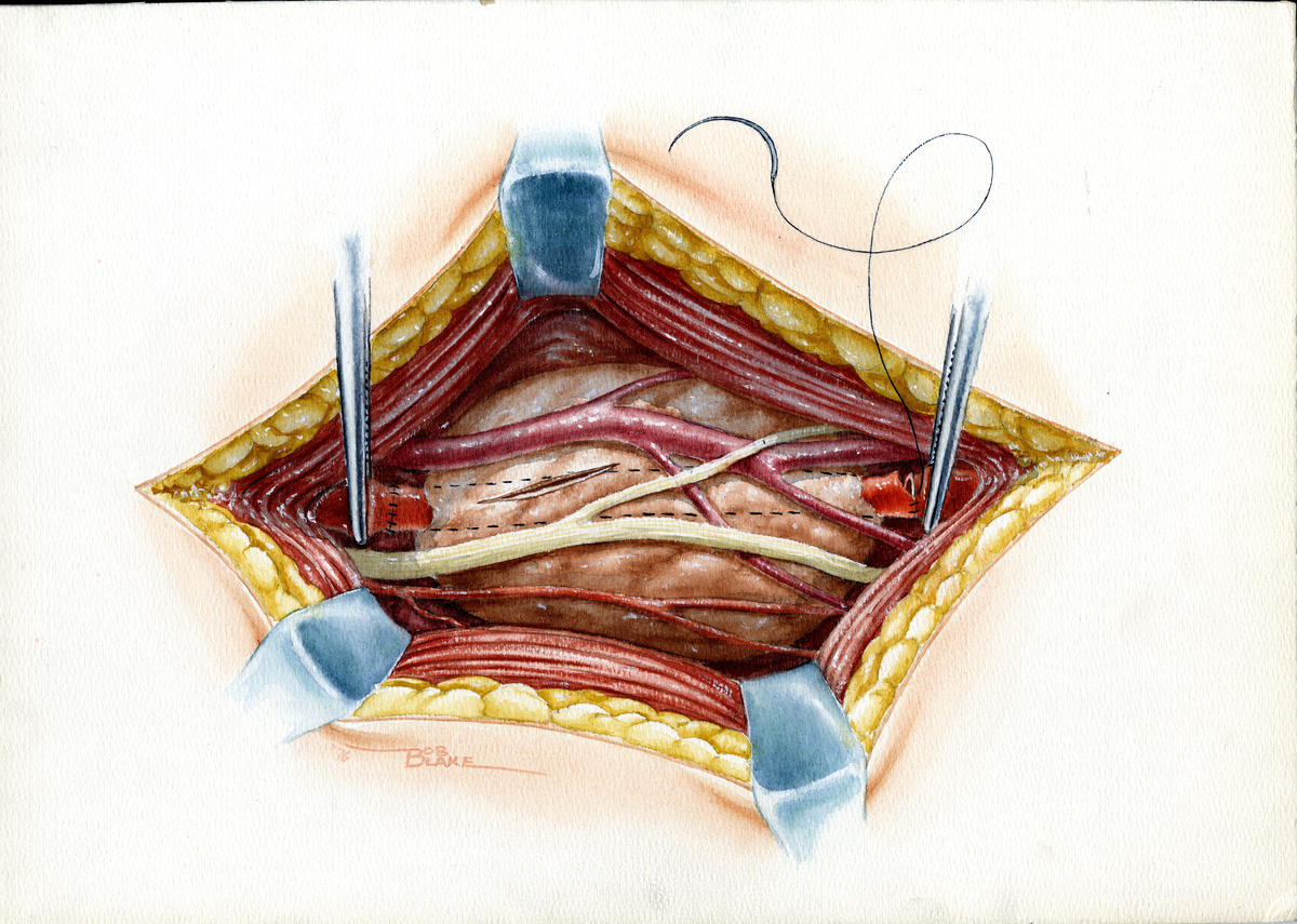 Aneurysm Bypass, pencil and watercolor; Robert L. Blake Papers